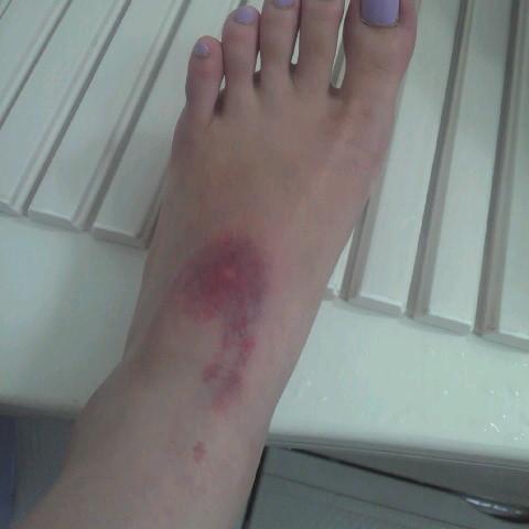 写真: わたしの左足…蚊かと思って...